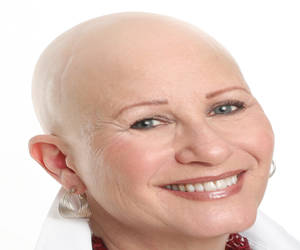 Thea Chassin - Alopecia Areata Charity Founder