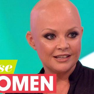 Gail Porter hot model that suffers Alopecia hair loss