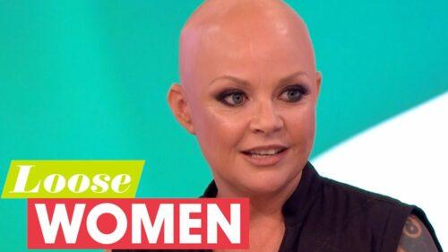 Gail Porter – Bald Female TV Presenter