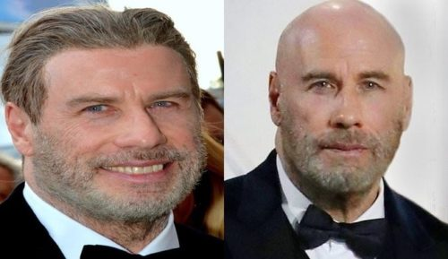 John Travolta side by side with hair and without